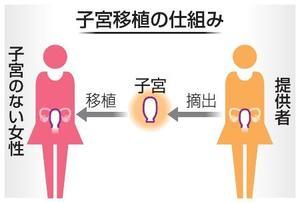 子宮移植の仕組み