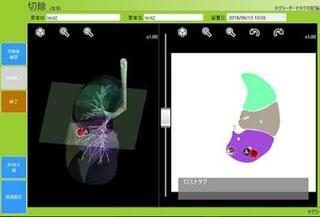 微小な肺がんの位置チップで特定